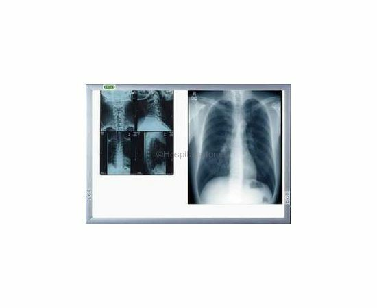 Double Screen Easy Use X- Ray Viewers